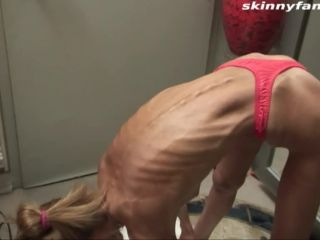 Anorexic 2549-inna13