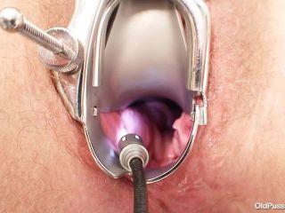OldPussyExam - Ariana - Gyno  | gyno exam | mature porn circumcision fetish